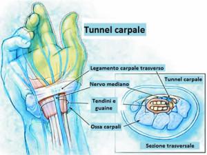 tunnel-carpale